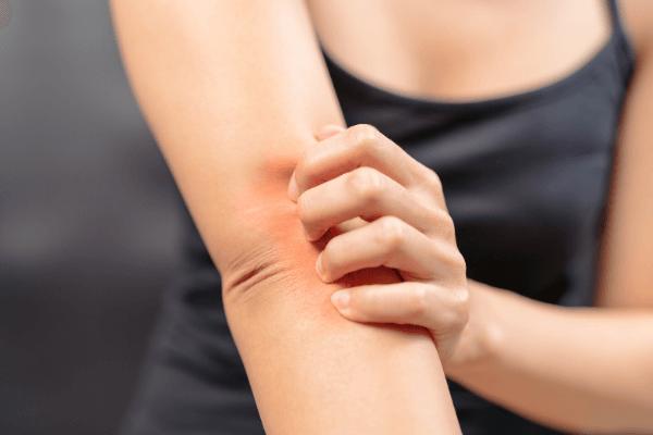 Кожный зуд по всему телу: в чем причины и как избавиться от дискомфорта?