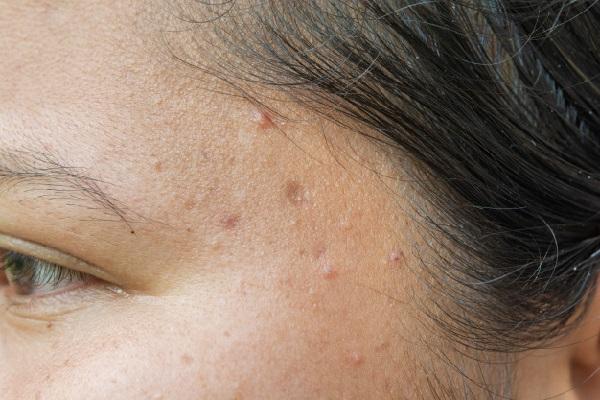 Причины высыпаний на лице (у женщин)